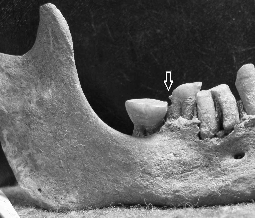 WLH 4 mandible, arrow shows the location of interproximal groove on the second molar.